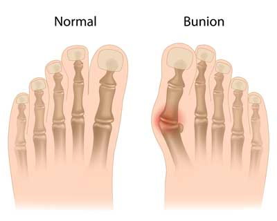 Bunions | Mayfair Foot Care