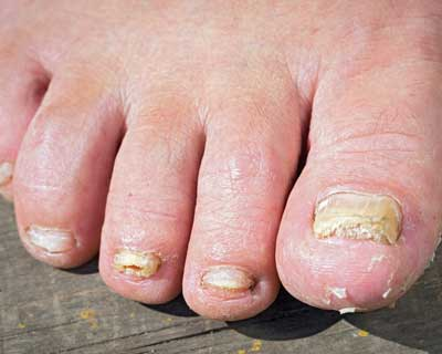 Fungal Nails | Mayfair Foot Care