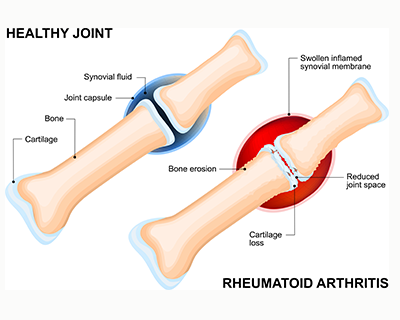 Rheumatoid Arthritis Mayfair Foot Care