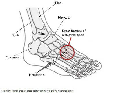 Stress Fractures Of The Foot And Ankle Mayfair Foot Care
